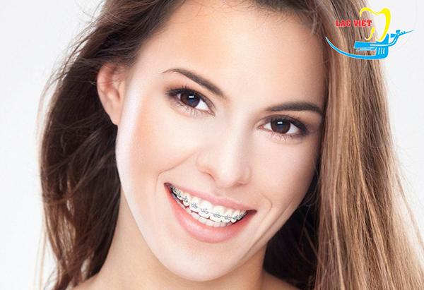 niềng răng thẩm mỹ bằng mắc cài kim loại