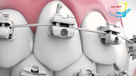 Niềng răng thẩm mỹ bằng công nghệ mắc cài tự buộc