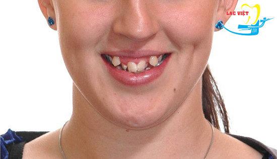 trường hợp niềng răng khấp khểnh thành công